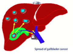 Gall bladder cancer treatment kerala