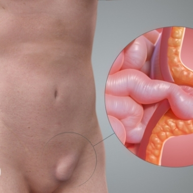 End Hernia Worries ! Get Expert Help in Treatment.