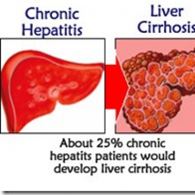 Liver Disease : Causes, Symptoms and Treatment